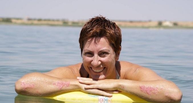 Esther Escribano, ganadora del concurso Destápate'13 organizado por Acción Psoriasis.