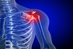 La guía contiene información sobre como tratar una lesión de hombro inestable.
