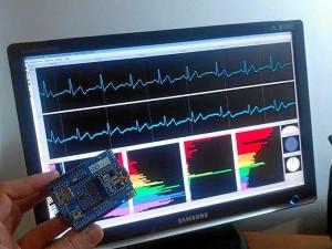 Prototipo de Vital Signs hecho con arduino y con la transmisión inalámbrica recibida por PC en tiempo real.