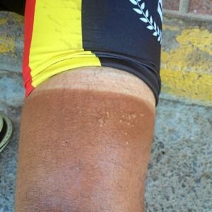 Los estragos de tantos días en bici.