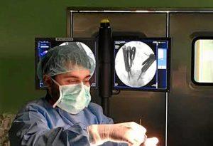 Los cirujanos inciden en que el empleo de esta técnica no implica que la clásica, mediante el abordaje abierto como se venía haciendo hasta ahora, no sea válida.