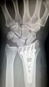 La osteogénesis por distracción ósea es un procedimiento de reconstrucción en el que se utiliza un elemento externo denominado distractor que separa gradualmente el hueso.